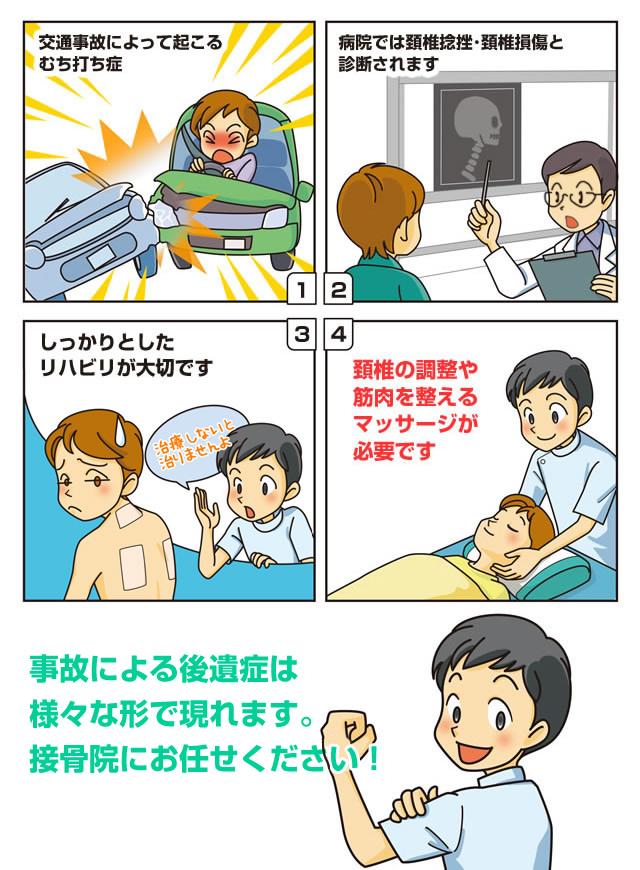 各務原市の交通事故による後遺症の漫画