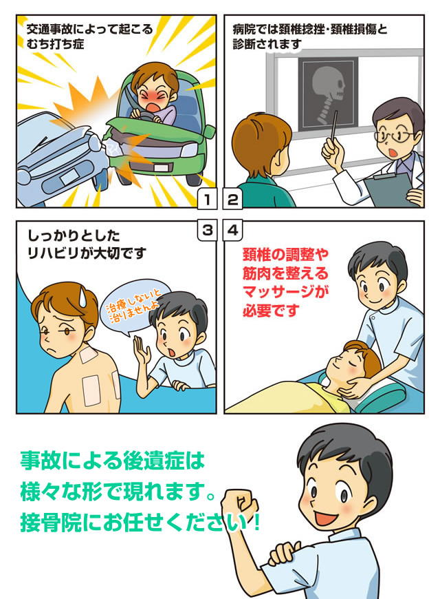 交通事故による後遺症の漫画